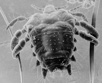 Phtirius pubis, communément appelé pou du pubis ou morpion, responsable de la pédiculose pubienne ou phtiriase